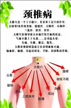 汗蒸 颈椎病